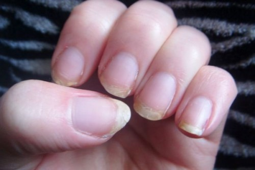 brittle-nails-hands-cracked